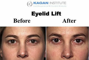 , Blepharoplasty in Los Angeles