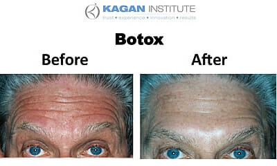 , Botox In Los Angeles and Beverly Hills
