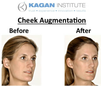 , Cheek Augmentation