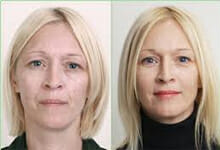 , Here's A Seven-Year Botox Patient – Meet Lisa…