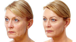 , Kagan Institute now offers the exciting JUVEDERM VOLUMA!