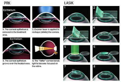 , She Preferred PRK Over LASIK – And She's Very Glad