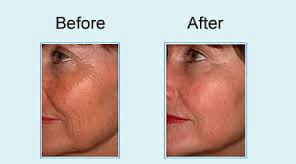, Lisa Loves Her New Smooth And Tightened Face