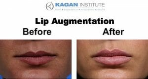 lip enhancement, Lip Enhancement