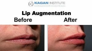 , Lip Enhancement