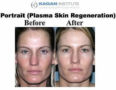 , Plasma Skin Rejuvenation