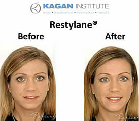 , Restylane