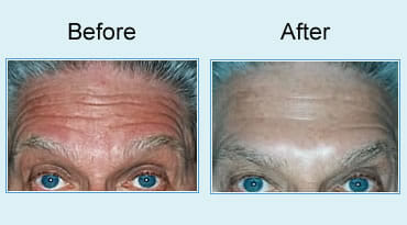, Botox treatment