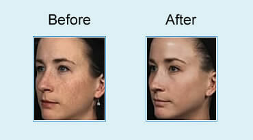 , Erbium Skin Resurfacing