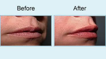 , Lip Augmentation