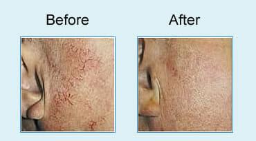 , Spider vein treatment