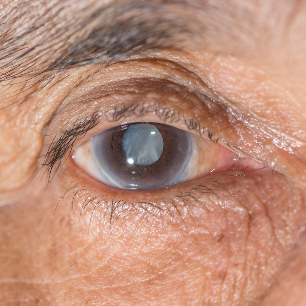cataract treatment, Cataract Treatment FAQs: How Can You Prevent Cataracts From Getting Worse?